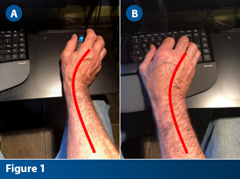 Comparison showing TFCC compression on adult hand while using computer keyboard