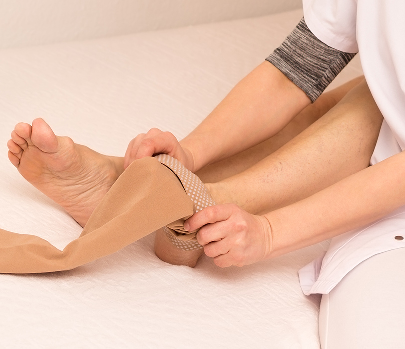 Nurse applying compression stockings to patient.