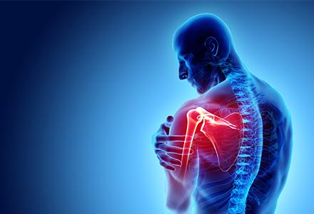 Shoulder Musculoskeletal System