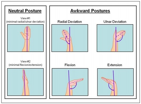 Graphic image showing hand postures.